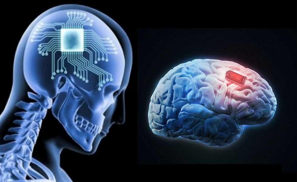 kernel-brain-chip-Brain-Chip-Implant-Technology