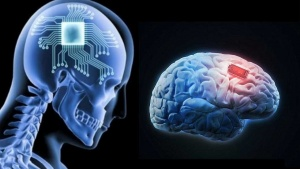 kernel-brain-chip-Brain-Chip-Implant-Technology